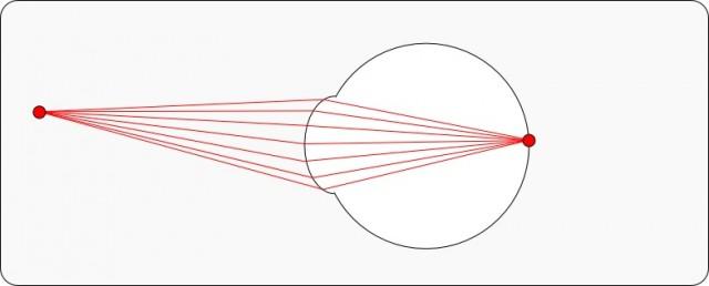Un ojo sano. Cada punto de visión se convierte en un solo punto en la retina.