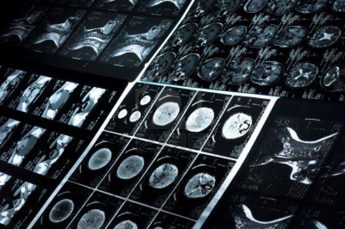 Tomografía computarizada en la lesión pediátrica de la cabeza