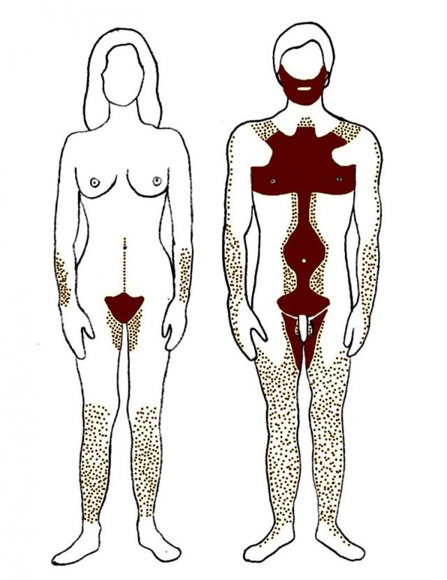 Distribución del vello androgénico en hombres y mujeres. Fuente