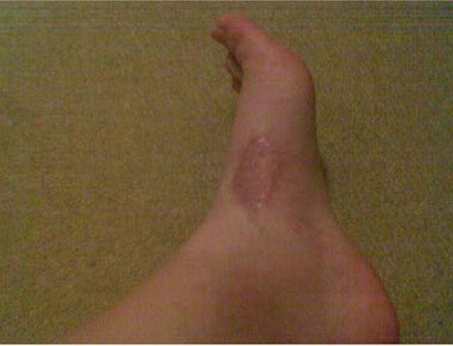 Cicatriz tras mordedura de Loxosceles rufescens en un paciente en Turquía