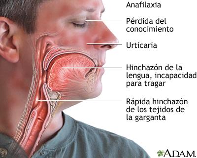La anafilaxia es un tipo  de reacción alérgica generalizada que se puede presentar como resultado de reacciones inmunológicas a alimentos, fármacos, picaduras de insectos, etc. Fuente: MedLine