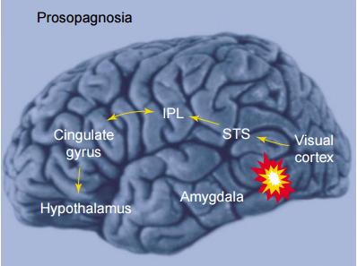 En prosopagnosia la ruta ventral consciente se encuentra dañada y por consiguiente, el reconocimiento facial está comprometido. Adaptada de la Ref. 1.