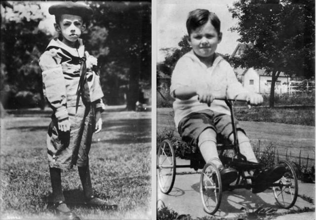 Teddy Ryder antes de la terapia con insulina, en 1922, y un año después, en 1923. Credito imagen