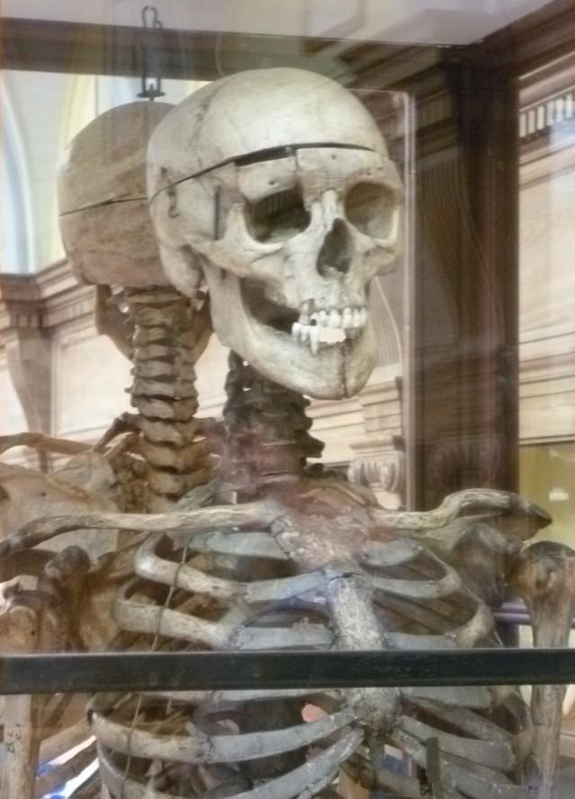 William_Burkes_skeleton