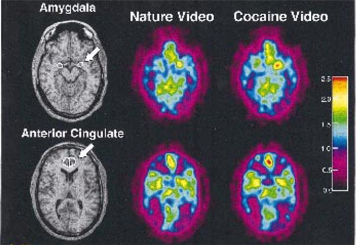 Imágenes transaxiales que ilustran el aumento diferencial en la amígdala y el cíngulo anterior en un paciente adicto a la cocaína en desintoxicación, mientras ve un vídeo no relacionado con la droga y otro que sí lo está.