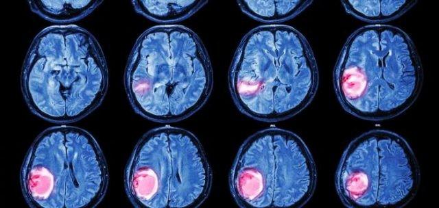 brain-tumor-640x304