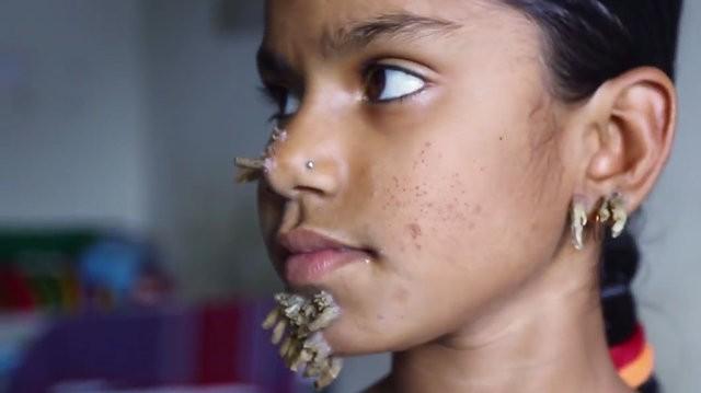 Sahana Khatun presenta los síntomas de la fibrodisplasia verruciforme en nariz, mejillas, barbilla y orejas. Fuente