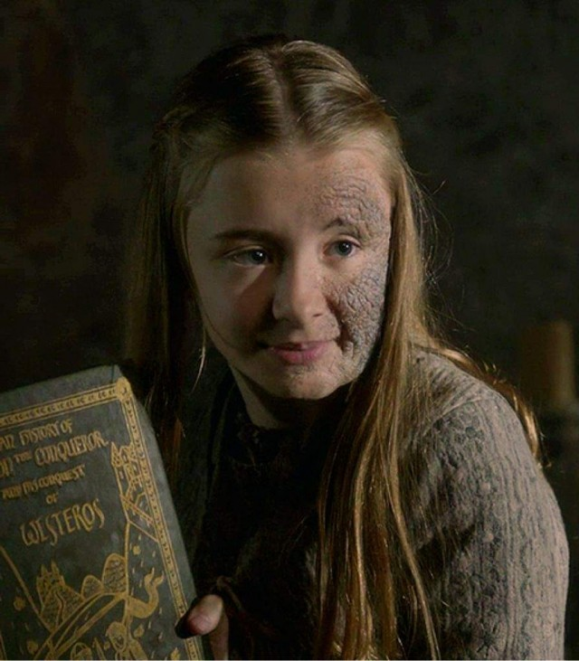 La simpática Shireen Baratheon. Fuente