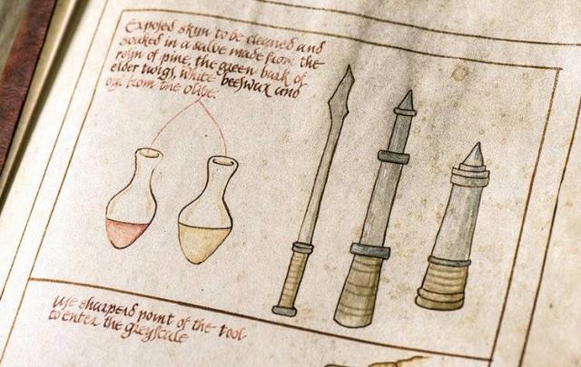 Algunos de los instrumentos y el ungüento usados por Sam