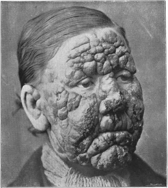Mujer afectada por la lepra. Walker, Norman Purvis (1905) An introduction to dermatology (3rd ed.). Fuente