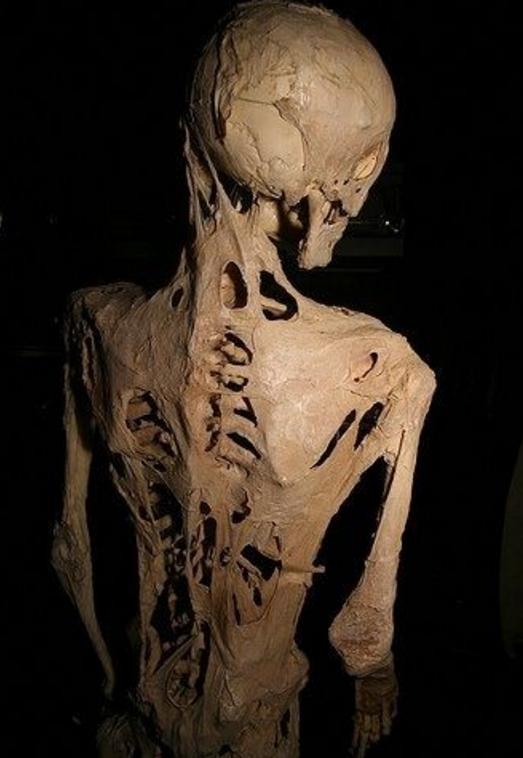 Esqueleto de Harry Eastlack, en el Mutter Museum en Filadelfia, Pensilvania. Fuente