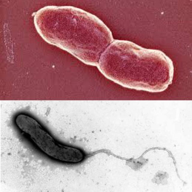 1. Vibrio mimicus. Fuente. 2. Vibrio Cholerae. Fuente.
