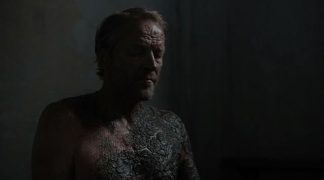 Ser Jorah y su psoriagrís. Fuente