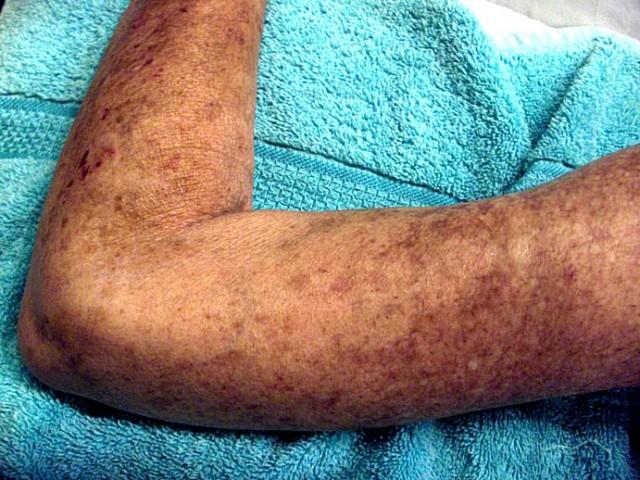 Despigmentación y síntomas cutáneos provocados por la esclerodermia. Fuente