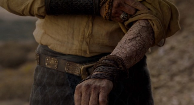 La psoriagrís de Ser Jorah empezó por su brazo. Fuente