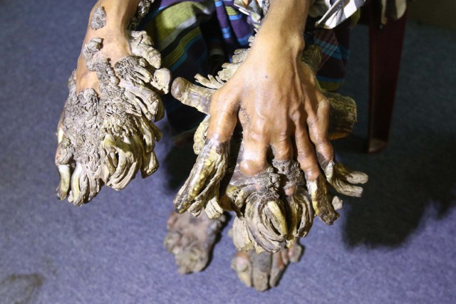 Manos y  pies de Abul Bajandar, afectados por el síndrome del hombre-árbol. Fuente