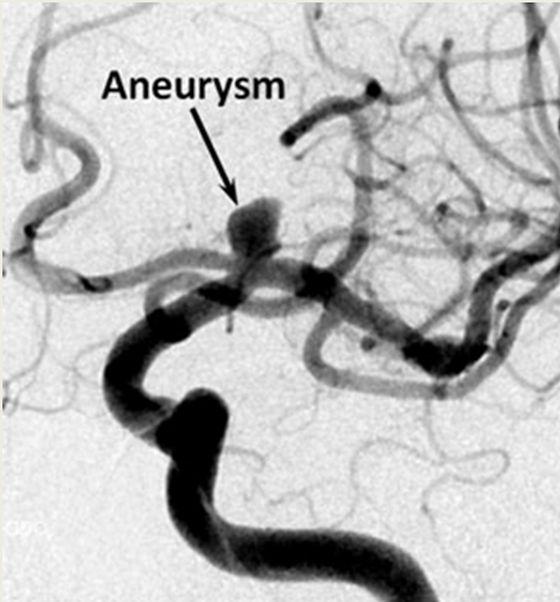 Aneurisma cerebral diagnosticado en arteriografía diagnóstica tras TAC que demostraba una hemorragia subaranoidea tras intensa cefalea brusca de inicio en breves segundos y que no cede con analgesia.