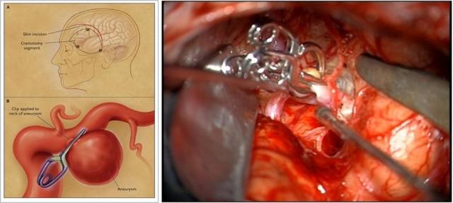 """Aneurismas de gran tamaño y con cuello muy ancho en que no es possible ayudarse de stent para introducer coils precisará la neurocirugía, mediante abertura del cráneo se debe clipar con """"clips quirúrgicos""""  el aneurisma por el cuello, excluyendo al saco de la circulación."""