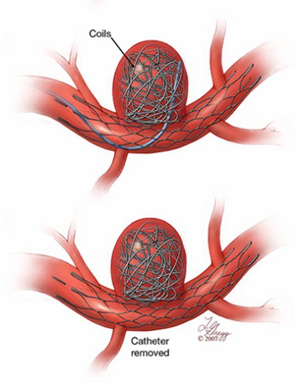 """Tratamiento del aneurisma mediante material de embolización """"coils"""" (alambres de platino que se introducen en la luz del aneurisma para ocluirlo. En ocasiones se ayuda de un stent de malla de normal densidad para introducir los coils a su través."""