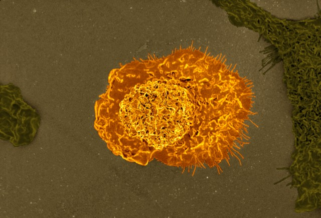 Marginal-macrophages-3-640x435