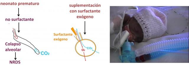 La falta de surfactante en los pulmones de los niños prematuros que nacen antes de que sus pulmones hayan madurado conduce a Distrés Respiratorio Neonatal. Actualmente se tratan mediante administración de un surfactante exógeno por vía endotraqueal lo antes posible tras su nacimiento