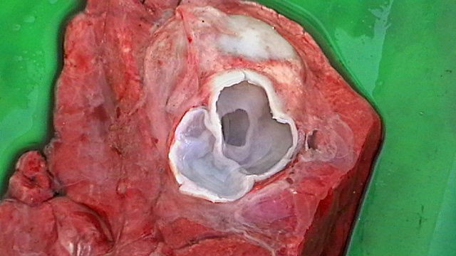 Quiste hidatídico abierto, en el pulmón de una oveja