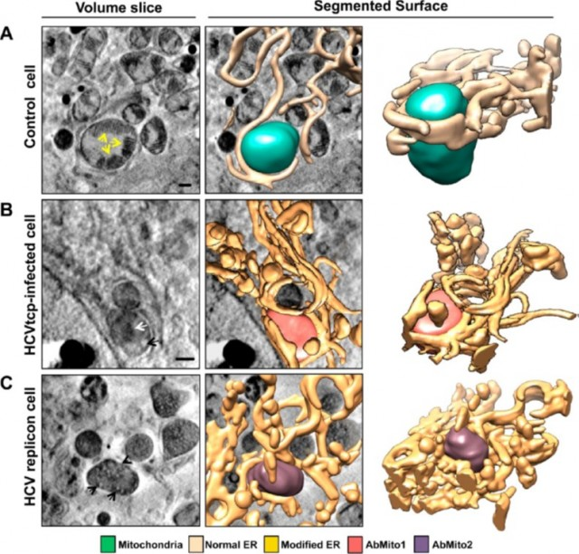 Arriba se observa una célula sana con un retículo endoplasmático y una mitocondria normales. En medio y abajo se pueden ver los efectos del virus sobre estos orgánulos