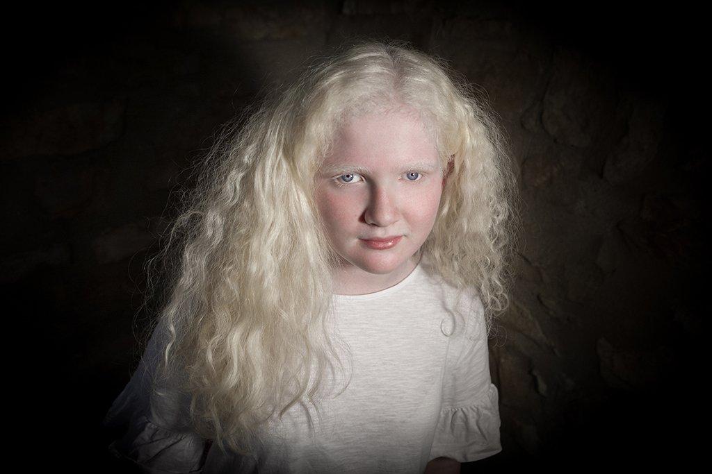 Niña con albinismo oculocutáneo. Fotografía de Ana Yturralde (http://www.anayturralde.com/)
