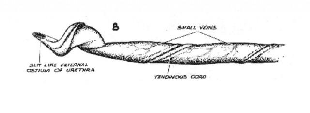 Detalle del glande de un verraco. Obsérvese la peculiar forma de sacacorchos. Fuente: https://www.minipiginfo.com/pig-anatomy-and-terminology.html