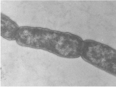 Una pequeña introducción al secretoma bacteriano.